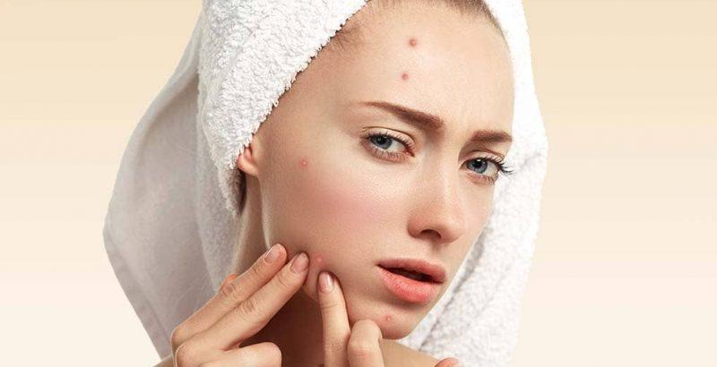jak leczyć trądzik hormonalny?